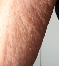 Arm Close-up Before Carboxytherapy