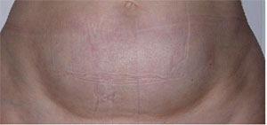Stomach After Carboxytherapy