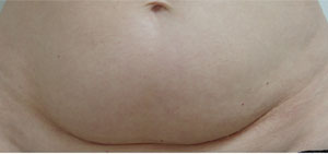 Stomach Before Carboxytherapy