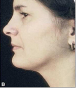 Chin After Laser Lipolysis Treatment