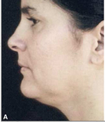 Double Chin Before Laser Lipolysis Treatment
