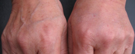 Elastence - Hand Rejuvenation