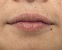 Female lips before micropigmentation