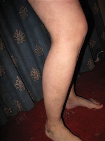The results of the Endovenous Laser Ablation treatment on Varicose Veins