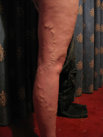 Before Endovenous Laser Ablation treatment on varicose veins