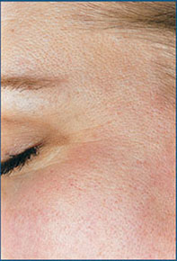 Fine Lines Around the Eyes After Microdermabrasion