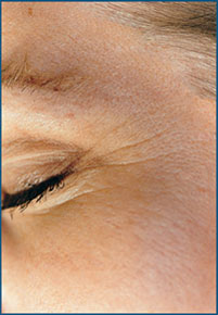 Fine Lines Around the Eyes Before Microdermabrasion
