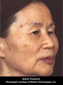 Fractional Laser Skin Resurfacing Information