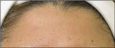 Forehead After Hydrafacial Treatment