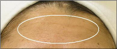 Forehead Before Treatment