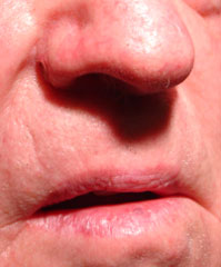 Intradermal Nevus of the Nose - After Radiosurgery