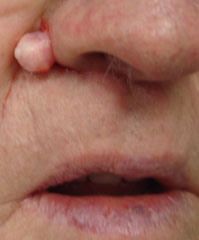 Intradermal Nevus of the Nose - Before