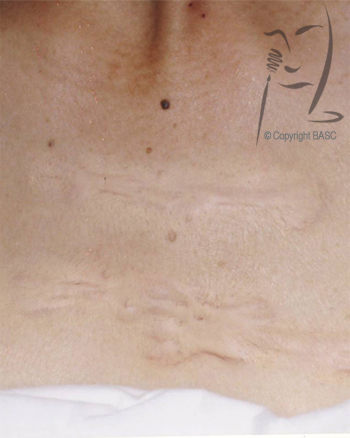 Visible difference in keloid scar after skin camouflage