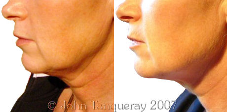 Laser Lipolysis Treatment on the Neck and Jawline
