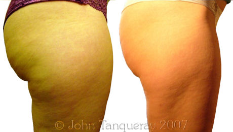 Laser Lipolysis Treatment on the inner and outer thighs