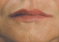 Improvement in lip shape and lip lines lines after treatment with Restylane®