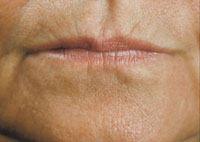 Thin lips and lip lines lines before treatment with Restylane®
