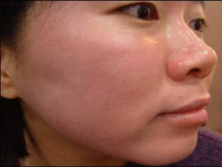 Acne After Treatment with MTS Roller