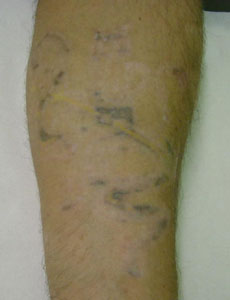 Laser Tattoo Removal - After 15 treatment sessions