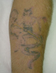 Laser Tattoo Removal - After 7 treatment sessions