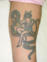 Laser Tattoo Removal - Professional Tattoo Before