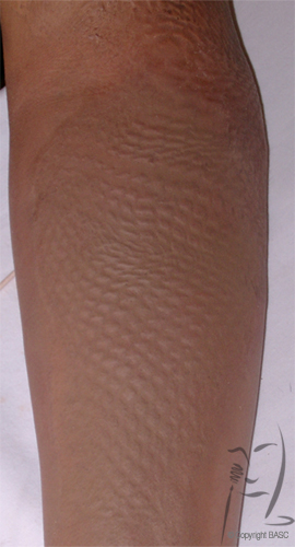 Mesh graft scarring following application of skin camouflage