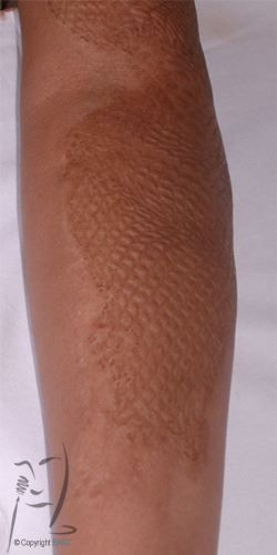 Mesh skin graft scarring
