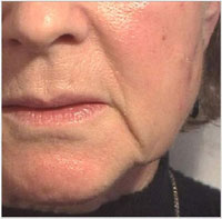 Nasolabial folds and oral commissures before treatment with Juvederm®