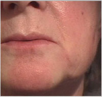 Nasolabial folds and oral commissures after treatment with Juvederm® 30