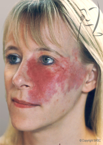 Port Wine Stain on female face