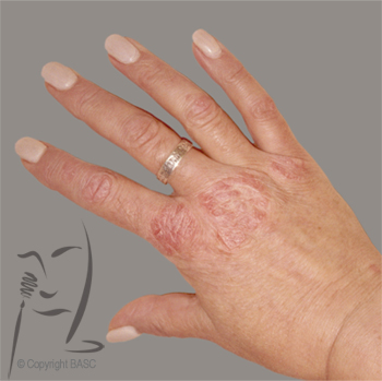 Psoriasis on Hand Includes Psoriasis on the Palm, Knuckles, Wrist and Fingers 2