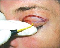 Radiosurgery Blepharoplasty