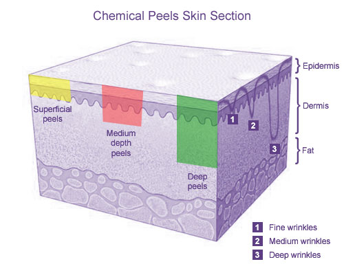 Chemical Peels Skin Section