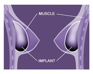 Breast Implant Positioning