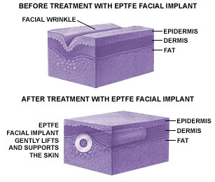 EPTFE Facial Implant