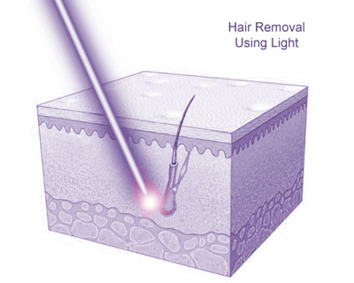 Hair Removal Using Light