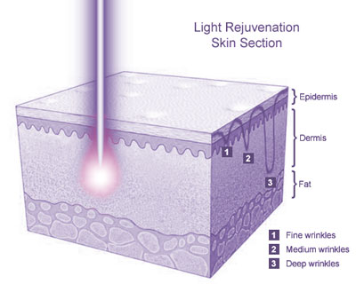 Light Rejuvenation Skin Section