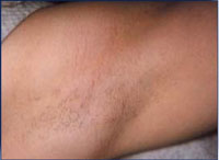 Reduction in underarm hair following a course of 2 IPL treatments over 4 months.