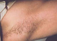 Female with underarm hair before treatment.