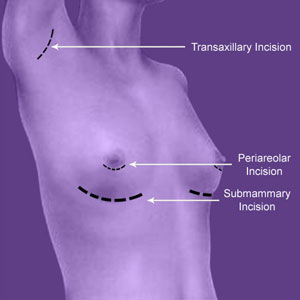 cosmetic surgery breast augmentation
