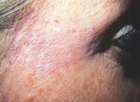 Patient 2 years after 1 laser and 3 IPL treatments.