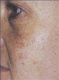 Female with sun damage.