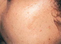 Patient 2 months after 2 IPL treatments.