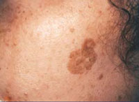 Female with pigmented lesion on the cheek