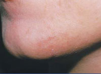 Reduction in facial hair following a course of 3 IPL treatments over 6 months