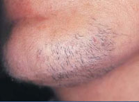 Female with facial hair before treatment.