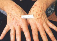 Female with age spots on the hands (sun induced freckles) before treatment.