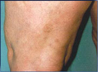 Patient 3 months after 2 laser and 3 IPL treatments.
