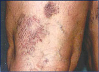 Female with varicose and spider veins.
