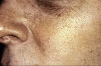 Female after 4 IPL Treatments
